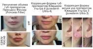 инъекционная косметология в Клиника экспертной косметологии «Волна»