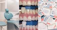 лечение зубов в Стоматологический центр «Мневникидент»