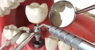прием стоматолога в Клиника «Дентика»