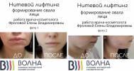 услуги в Клиника экспертной косметологии «Волна»
