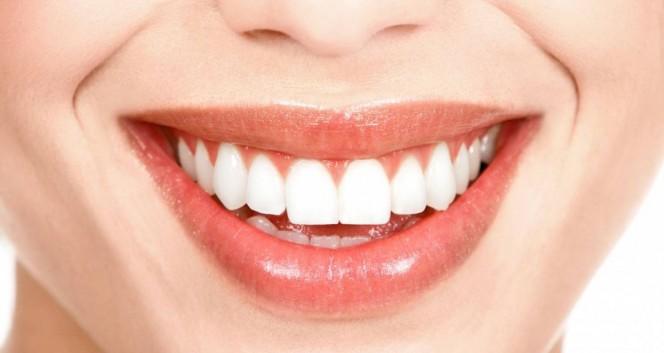 ровные белые зубы в Стоматология «ДИАМАНТ» в Стоматология «ДИАМАНТ» на Энгельса