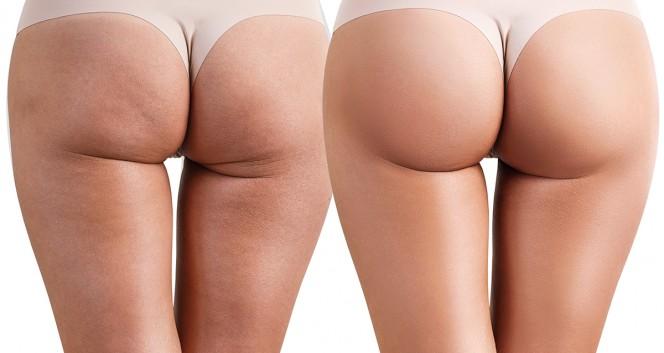 Скидки до 50% на коррекцию фигуры на Восстания и Петроградской в Медицинский центр косметологии Ju Vise в Медицинский центр космет