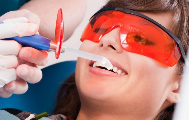 отбеливание зубов рязань цена